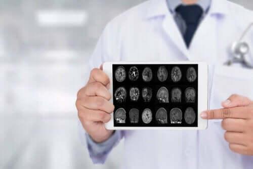 Scan van de hersenen