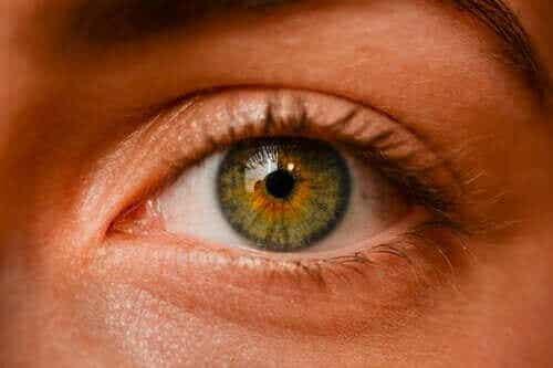 Oculaire nevi: zijn sproeten in het oog gevaarlijk?