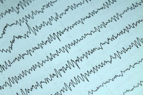 Hoe epilepsie en borstvoeding onder controle te houden