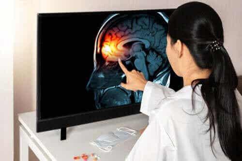 Leer alles over de hersenvliezen