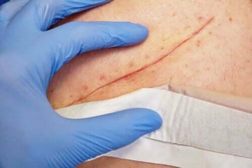 Arts bekijkt een litteken