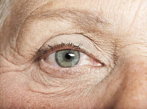 Sproeten in het oog