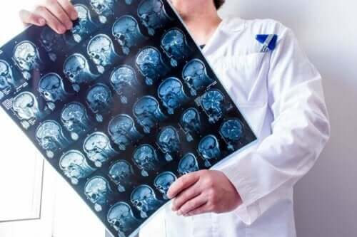 Arts met een scan van de hersenen