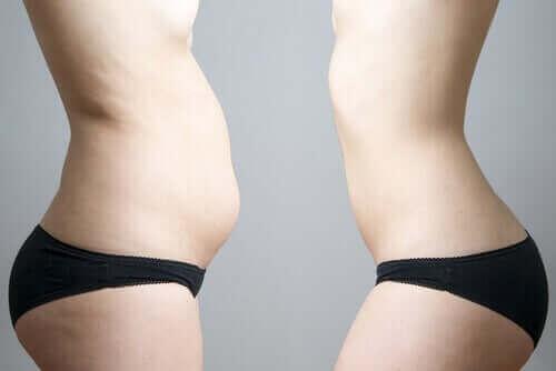 Spiegelbeeld van een vrouw met minder buikvet door cryolipolyse