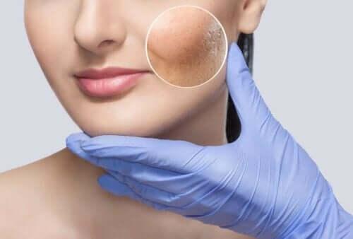 Dermatollog onderzoekt een huid