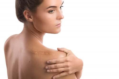 Vrouw met litteken op schouder