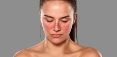 Vrouw met uitslag op haar gezicht