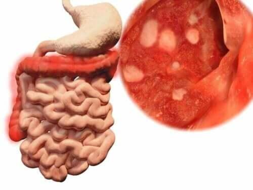 Voedsel eten dat op de grond is gevallen kan ziektes veroorzaken