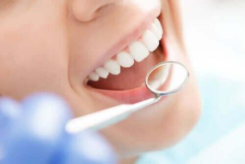 Vrouw op controle bij de tandarts