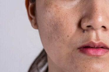 De oorzaken van hyperpigmentatie