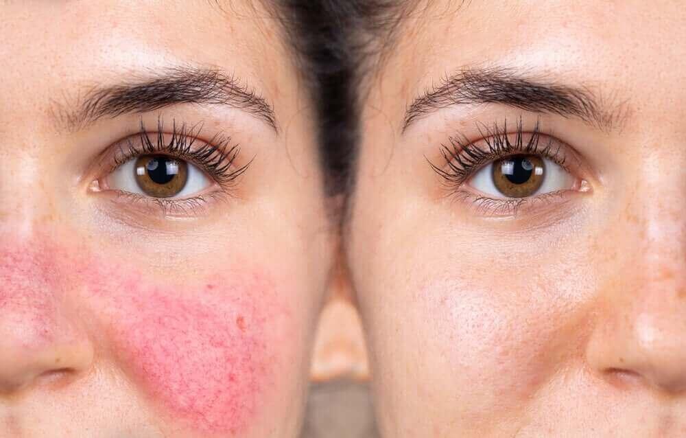 wat je moet weten over een reactieve huid