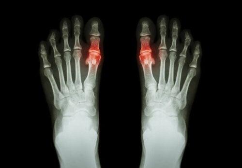 Een röntgenfoto van twee voeten
