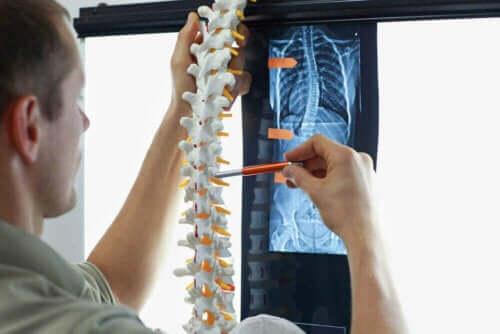 Röntgenfoto van wervelkolom