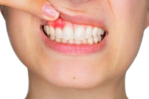 Het gebruik van hyaluronzuur in de tandheelkunde zoals bijvoorbeeld bij tandvleesontstekingen
