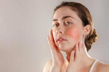 Alles wat je moet weten over een reactieve huid