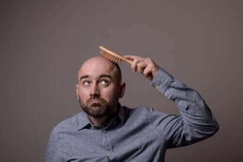 Alles over de verschillende soorten alopecia