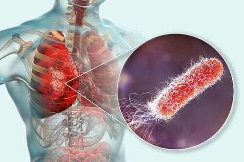 Zitten er bacteriën in de longen?