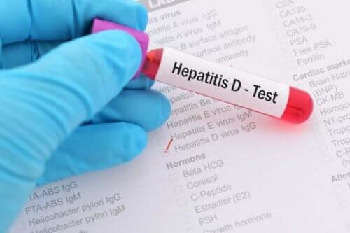 Bloedtest voor hepatitis d