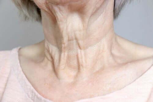 Hals met rimpels
