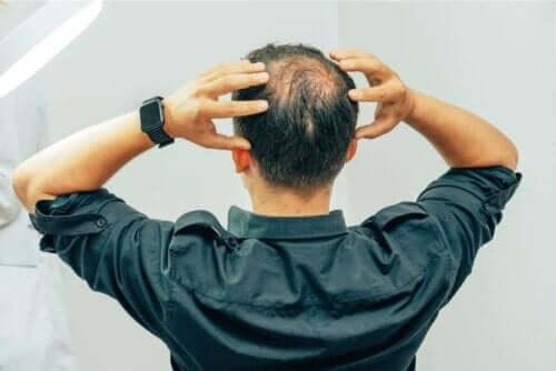 Een man met alopecia grijpt zijn hoofd vast