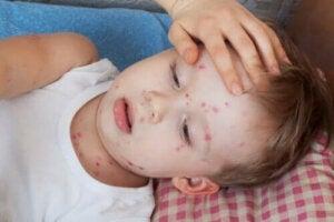 Hoe netelroos bij kinderen te behandelen