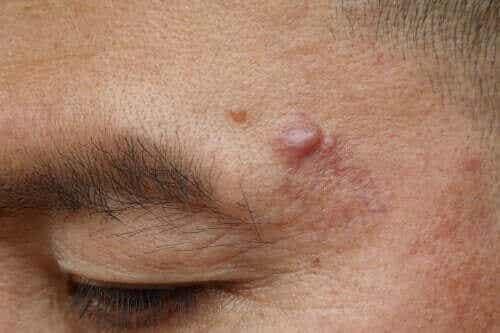 Oorzaken en behandelingen voor epidermale cysten