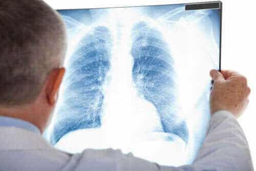 Wat is een atypische longontsteking?
