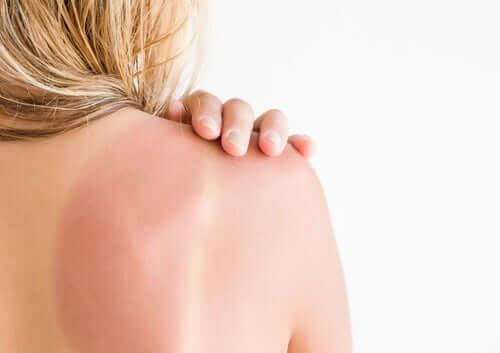 Behandeling en aanbevelingen bij zonne-erytheem