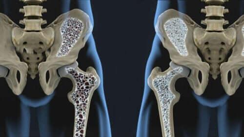 Een vergelijking van de botdichtheid met iemand met osteoperose