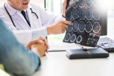 Neurogluten: gluten en neurologische aandoeningen