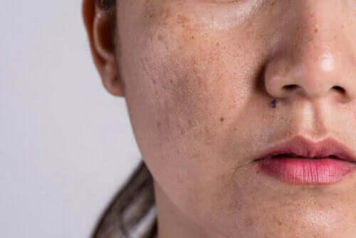 Vrouw met huidveranderingen in het gezicht