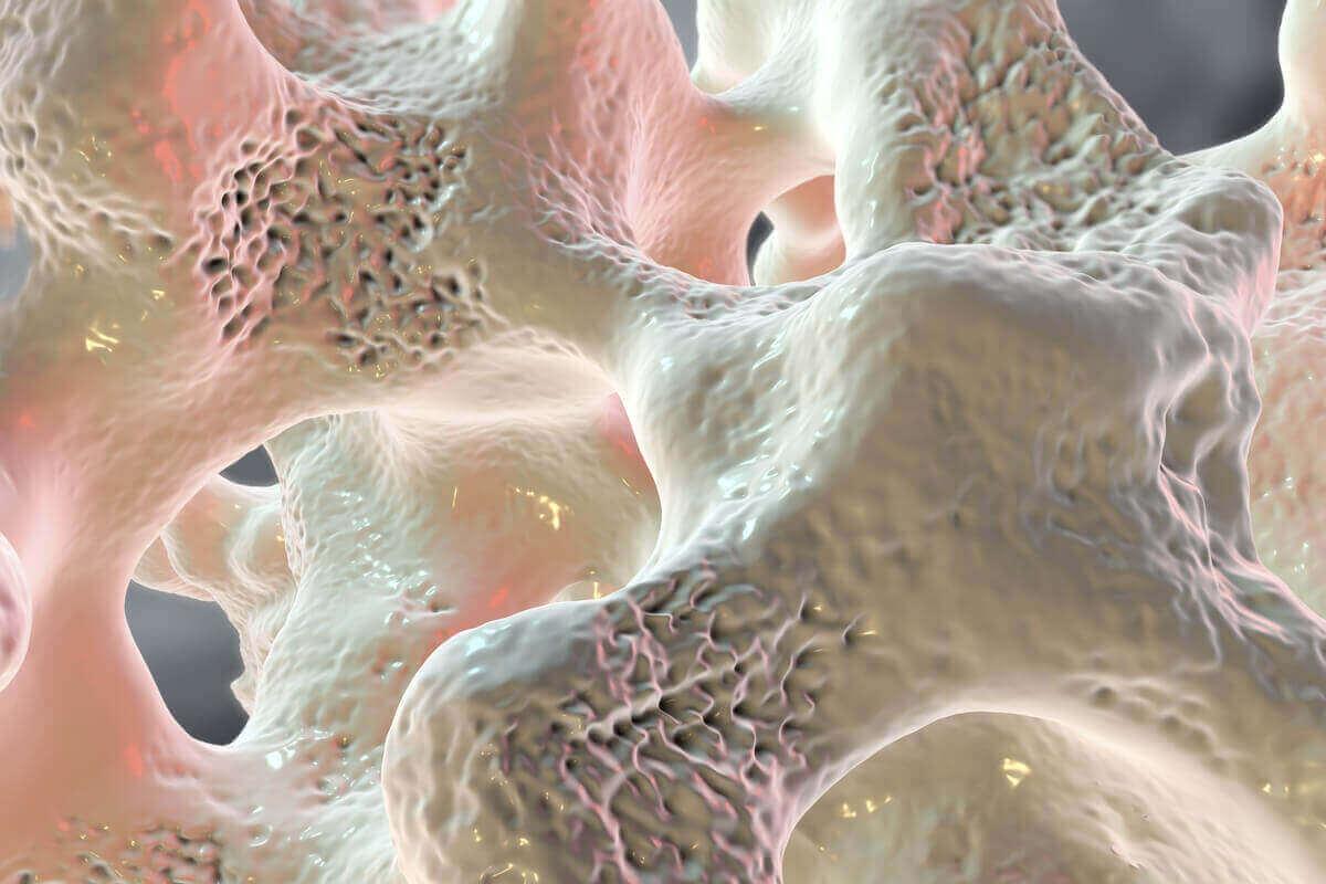 Een digitaal beeld van beenmergoedeem