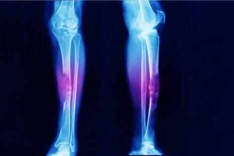 Een röntgenfoto van een paar benen