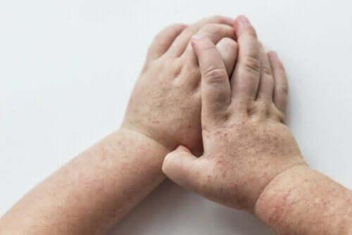 Handen vol met uitslag