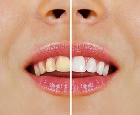 Natuurlijke producten voor het bleken van tanden