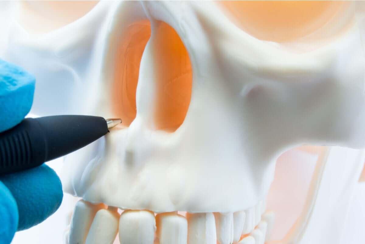 Een schedel met een afwijkend septum