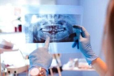 Oorzaken van ontwrichting van het kaakgewricht