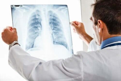 Een röntgenfoto van een long