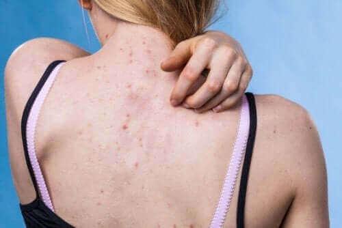 10 oorzaken en verschillende soorten huiduitslag