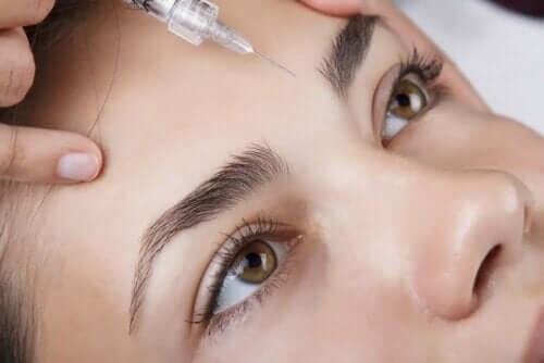 Botox tussen de wenkbrauwen