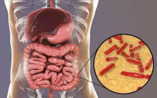 Hoe weet je of je darmmicrobiota is aangetast?