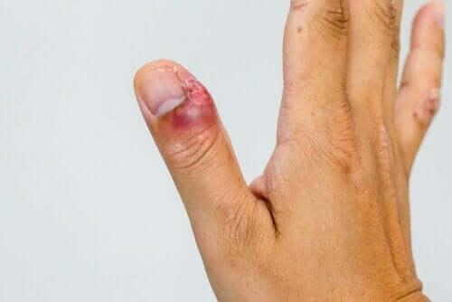 Ontstoken nagelriem van een duim