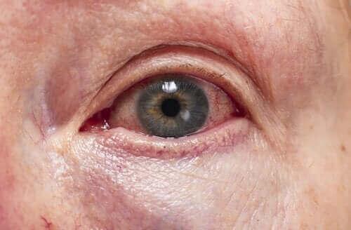 De diagnose en behandeling van uveïtis