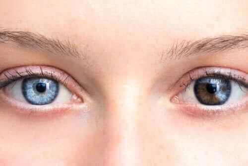 Veranderingen in de oogkleur: reden tot zorg?