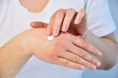 Persoon die handcrème na een bijensteek toepast