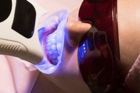 Lamp voor het bleken van tanden