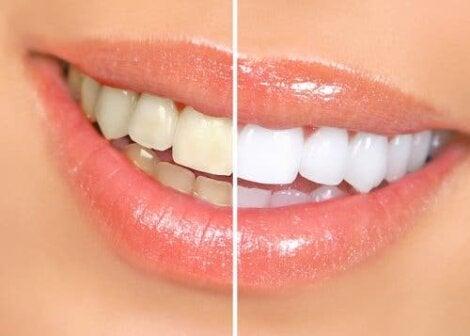 Tanden voor en na een behandeling