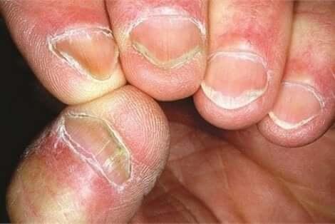 Nagels van iemand met de ziekte van Hallopeau