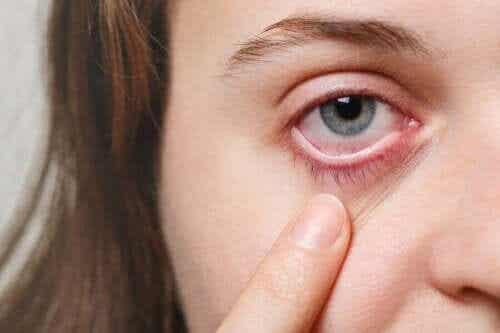 5 effectieve remedies voor ooginfecties