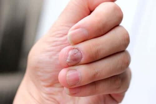 Wat is de ziekte van Hallopeau?